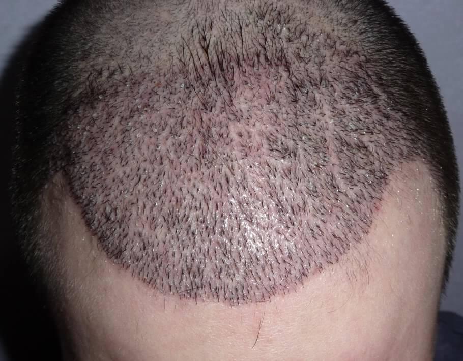 implante de cabelo