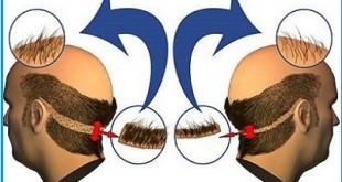 Implante de Cabelo Funciona Mesmo? Absolutamente Tudo Sobre o Implante Capilar