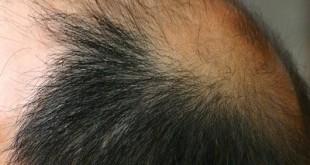 remedio para queda de cabelo pantogar
