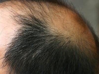 o-que-causa-queda-de-cabelo