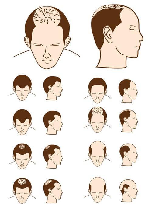 o que causa queda de cabelo