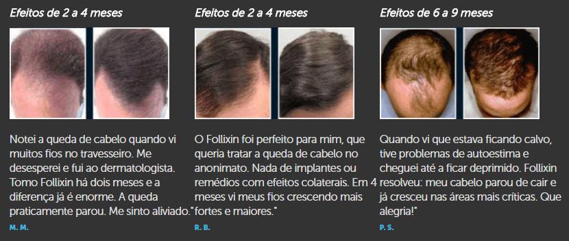Follixin Funciona - Remedio Para Crescer Cabelo → SEGREDO REVELADO!【Exclusivo】