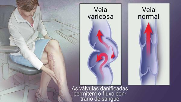 tratamento de varizes