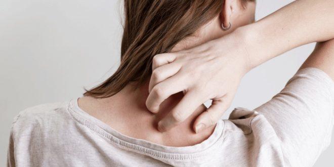 psoriase-é-contagiosa