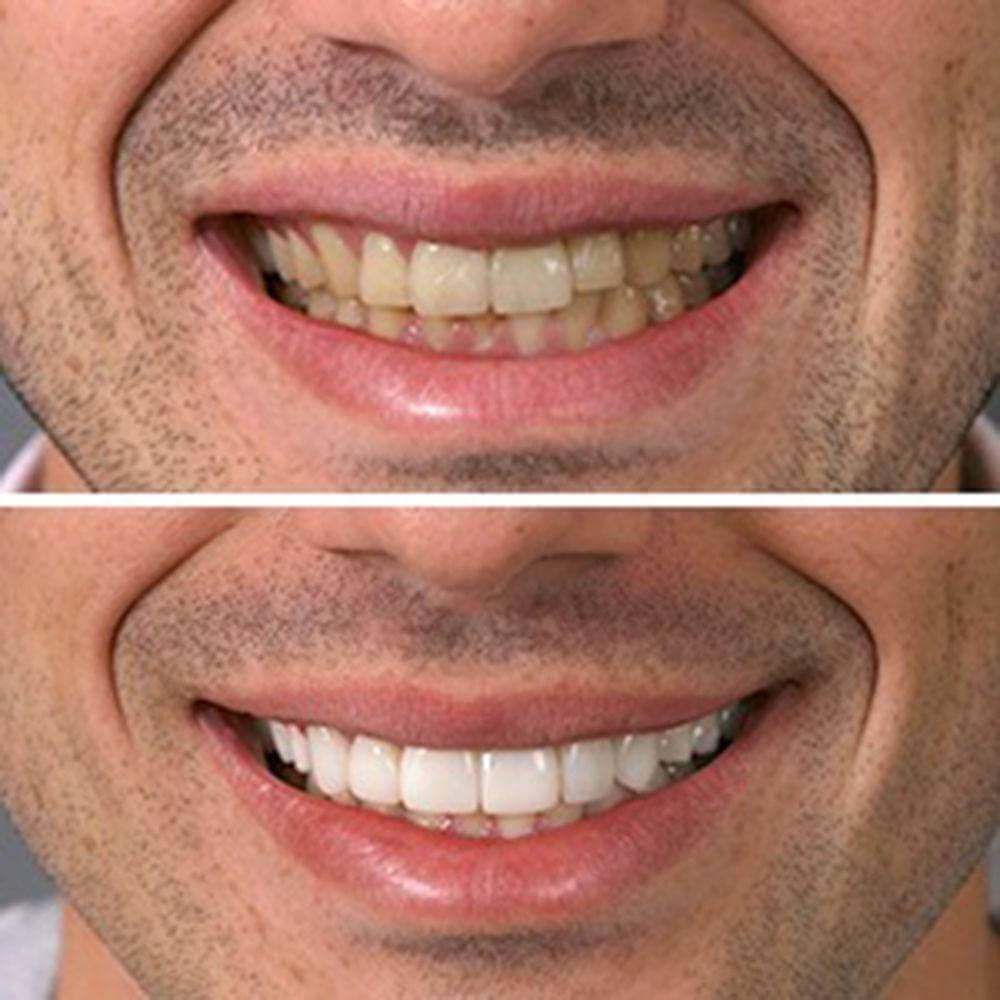 como ter dentes branco