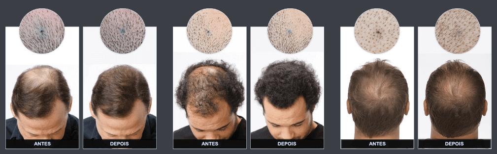 queda de cabelo antes e depois
