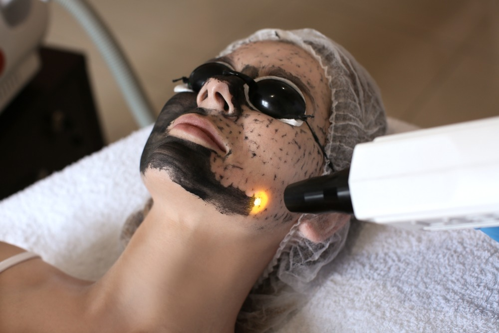tratamento a laser para manchas