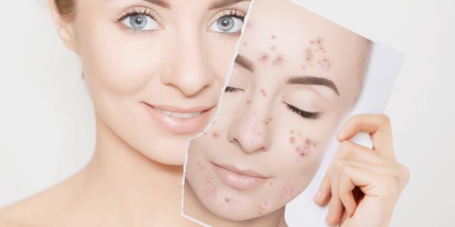 tratamentos-para-acne