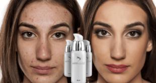 como eliminar marcas de acne